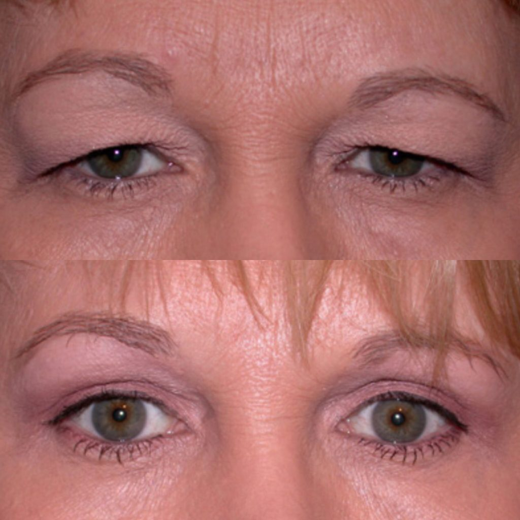 plasma-eyelids