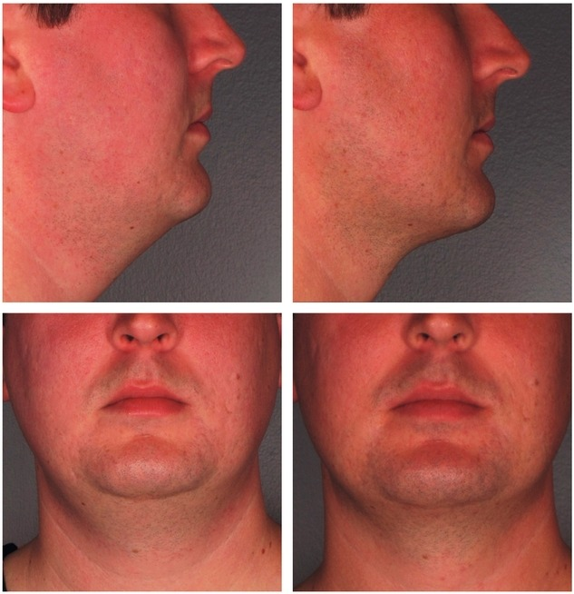 Kybella-Injections-for-Double-Chin-Reduction-Before-After-Photo