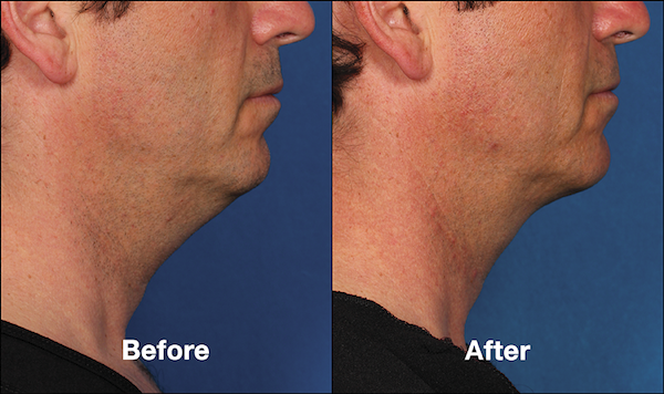 Kybella-before-after-male-double-chin